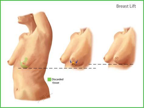 breast implant saline supply jpg 1000x752